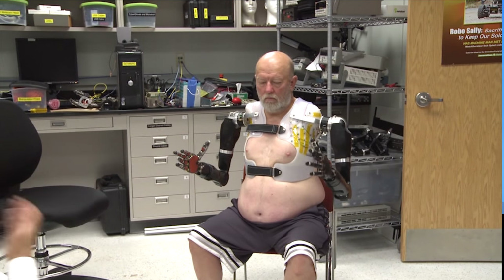 Кибернетический протез 4